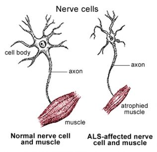 36 best stem cells motor neuron disease images on for What are the first signs of motor neuron disease