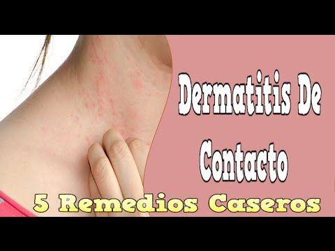 Atopichesky la dermatitis el hongo