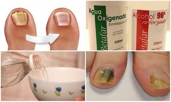 """Lo llaman el """"exterminador"""" porque de una sola pasada elimina todos los hongos de uñas en los pies."""