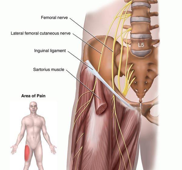 xlif femoral nerve damage – citybeauty, Muscles