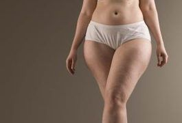 """Cellulite is a problem that affects 90 percent of women, according to the CNN article """"Elusive search for cellulite cure continues."""" It is not completely understood, but cellulite is believed to be genetic, at least to some extent. However, diet and cellulite are definitely related, and a proper diet can help reduce and prevent the..."""
