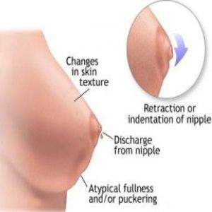 Common Symptoms of Breast Infection in Women