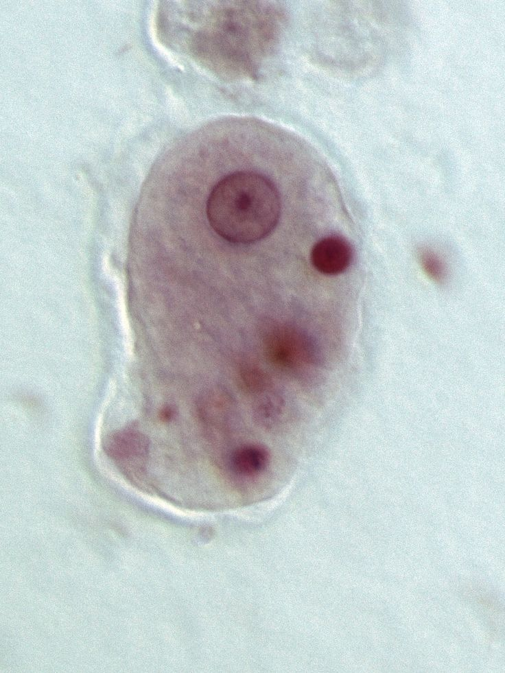 A certain parasitic amoeba (Entamoeba histolytica) kills about 70,000 people each year, but how exactly it causes apparent, devastating tissue damage has been unclear. Recently, a group of researchers found that the amoebas actually kill a person's cells by eating those cells alive! It's a very unusual tactic. You can read more about it at http://www.biology-bytes.com/ (Image credit: Stefan Walkowski)
