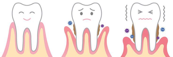 2º post a cerca de la la enfermedad periodontal que se produce en los tejidos que dan sujeción a los dientes. Tratamientos y diagnósticos.