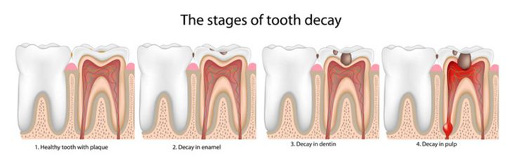 The stages of dental caries start with demineralization and initial tooth lesions, then go through enamel and dentin destruction, pulp infection and abscess formation.