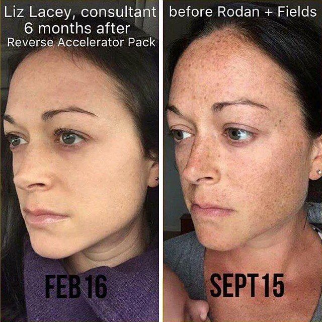 Liz has no foundation or powder of any kind on in her before & after…