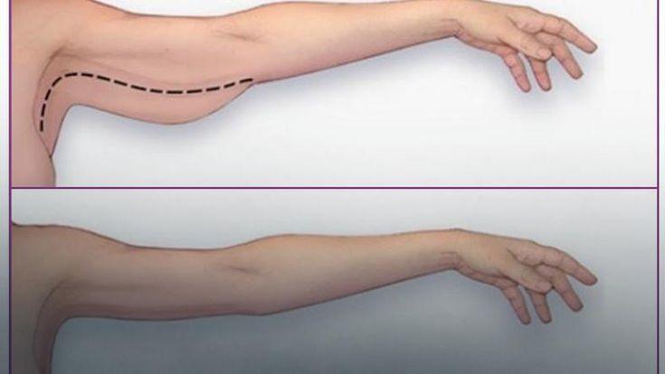 Jak pozbyć się obwisłej skóry na ramionach? Wystarczy proste ćwiczenie