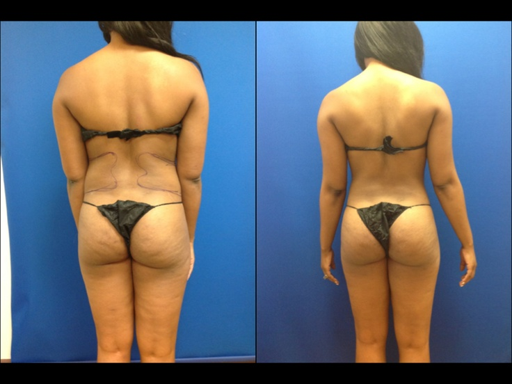 tummy liposuction, waist liposuction | Liposuction Before ...
