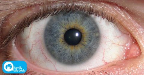 Image of According to science, people with blue eyes actually have brown eyes