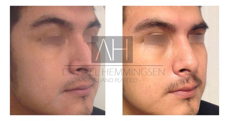 #Rinoplastia realizada por el cirujano plástico Dr. Axel Hemmingsen