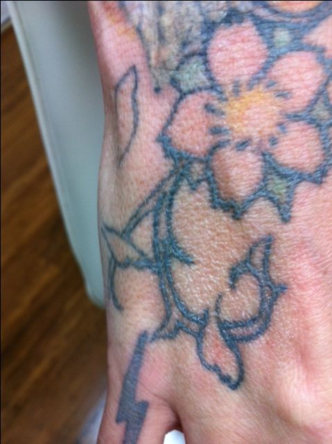 First Impressions Laser Clinic are hoping that these flowers will be gone after only two or three visits, watch this space for update photos. Call 9417 7748 for a free consultation  #tattoos,  #tattooremovalmelbourne, #tattooremoval, #lasertattooremoval, #beauty, #fashion, #picosure, #tattooregret, #tattoo, #picosurelaser