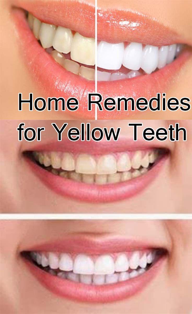Colgate teeth whitening teeth whitening products pinterest teeth - Home Remedies For Yellow Teeth Bio Healthy Living