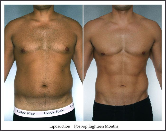 New York Male Liposuction Before And After Photo Gallery -4274