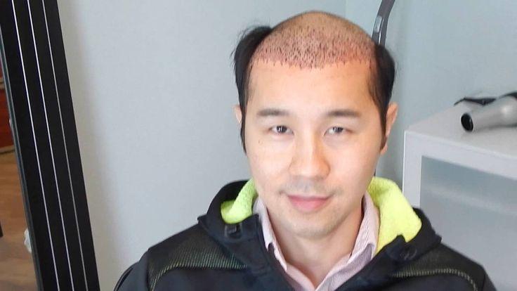 Hair Transplant Cost   Advanced Hair Restoration Alexandria Virginia   2 Day (Ryan)