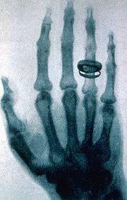 National Radiology Technology Week (November 5 – 9, 2012)