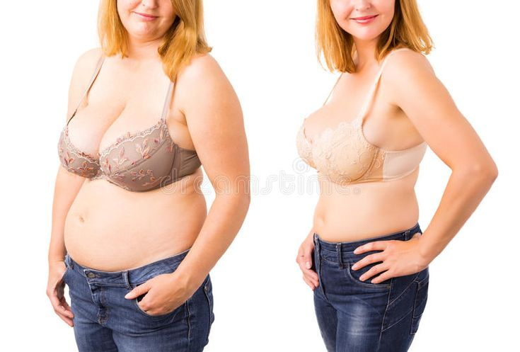 Woman before and after weight loss. Female before and after weight loss , #ad, #…