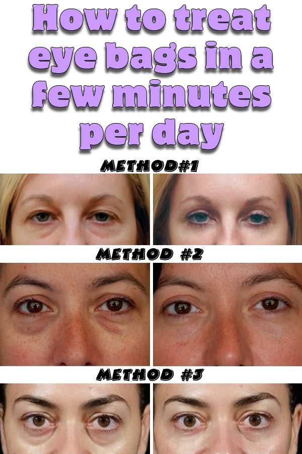 The bags under the eyes can be a very annoying and hard to solve problem, which affects both women and men. Unfortunately for completely eliminating the bags, it is necessary to undergo surgery; However there are different natural treatments that help to significantly reduce inflammation and thanks to this can conceal more this problem.