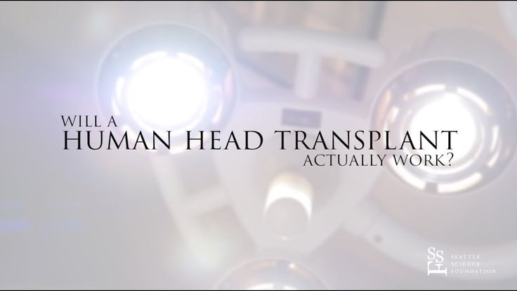 Why a human head transplant will fail https://www.youtube.com/watch?v=qSLBESmD2bc&feature=youtu.be