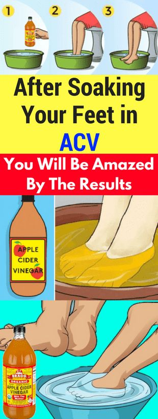 After Soaking Your Feet in ACV You Will Be Amazed By The Results -