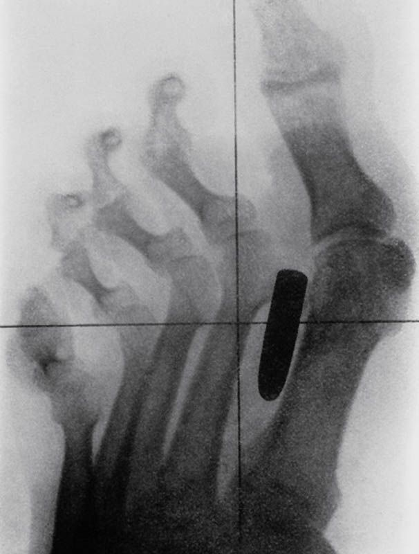 Most bizarre X-rays in the history of medicine (20 pictures) | memolition