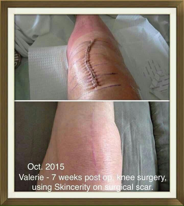 #scars #skin #beauty #aging #reverse #health #income #business #technology #retiredat21 #nofilter #lookgoodfeelgood #money #change #motivation #determination