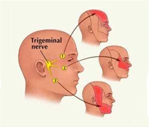 Knocked fibromylgia facial nerve hope