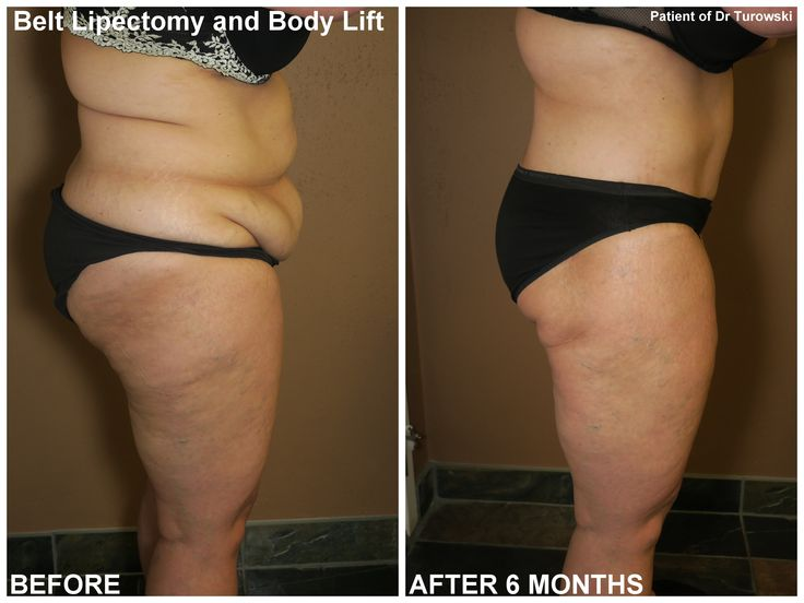 Weight loss before and after juice fast image 8