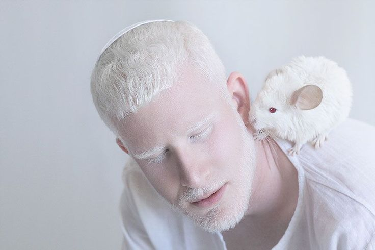 15+ Albino People Who'll Mesmerize You With Their Otherworldly Beauty | Bored Panda