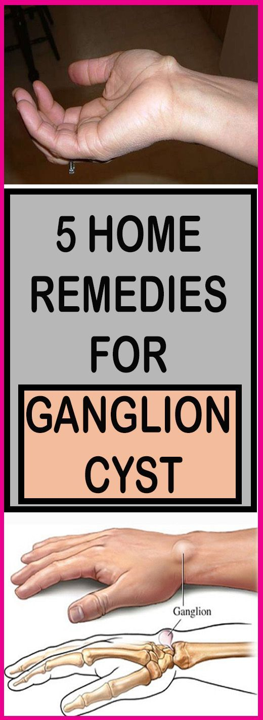 5 HOME REMEDIES FOR GANGLION CYST – Lifee Too
