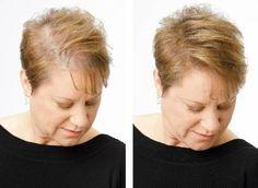 Ces huiles magiques arrêtent la chute de cheveux Si vous êtes à la recherche de produits de soins naturels pour vos cheveux, vous trouverez souvent