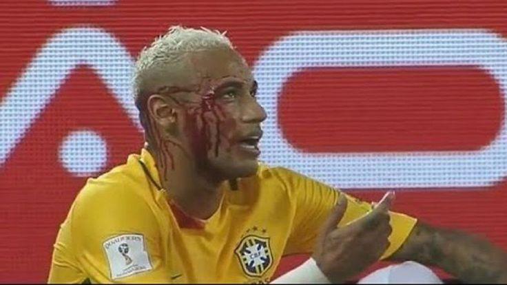 ব্রাজিলের জন্যে রক্ত ঝরাল নেইমার    Neymar Sacrifice her Blood for Brazil