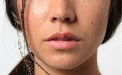 15 mitos e verdades sobre a plástica no nariz esclarecidos