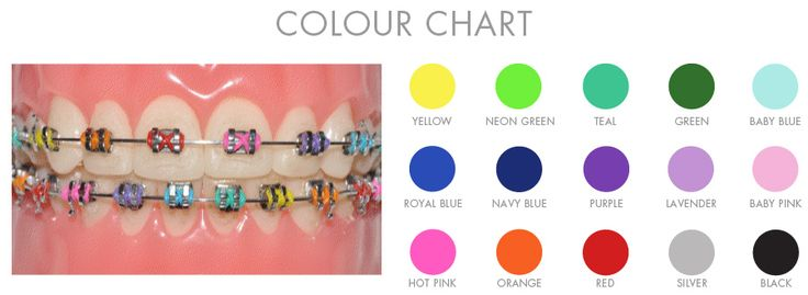 Braces colour chart oremdentist braces pinterest braces colors
