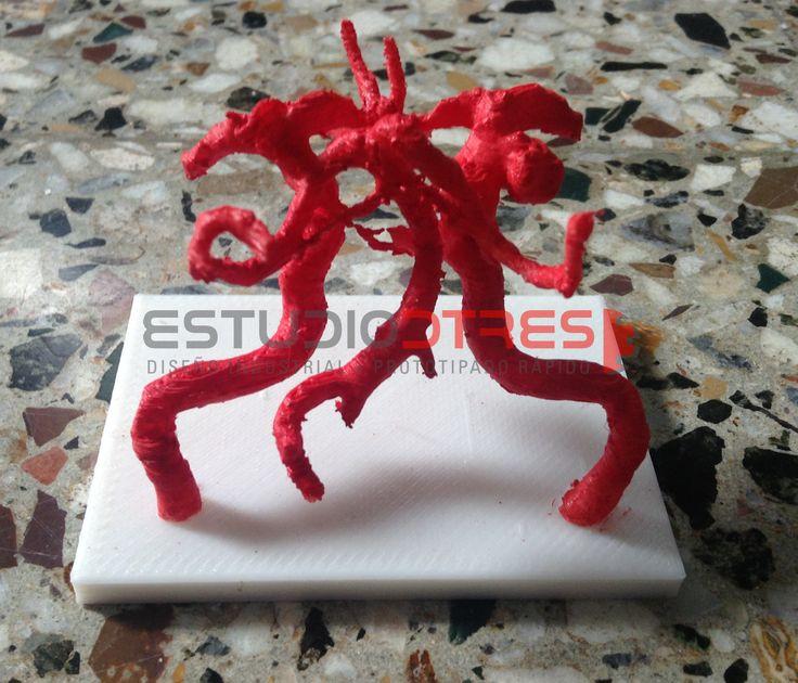 Aneurisma realizado mediante impresión 3d