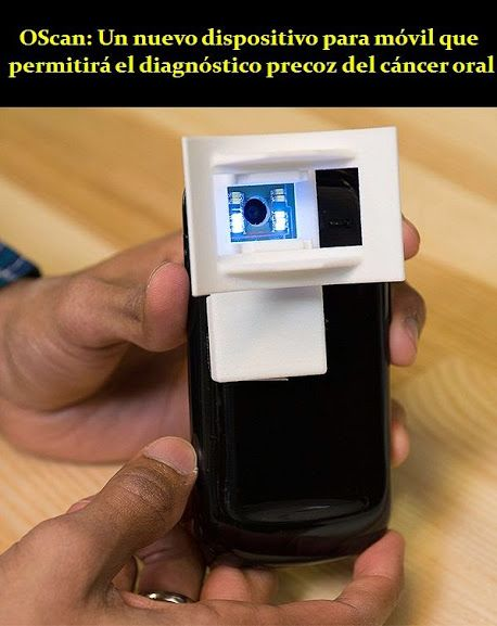 OScan: Un nuevo dispositivo para móvil que permitirá el diagnóstico precoz del cáncer oral | OVI Dental