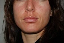 Visit our site http://www.rashonfaceblog.net for more information on Red Rash On Face.The use of homely Rash On Face procedure comes to be necessary if you have breakouts on your face and various other components of body because of different reasons consisting of absence of skin upkeep, extreme sweating, dryness on skin or level of sensitivity of the skin.