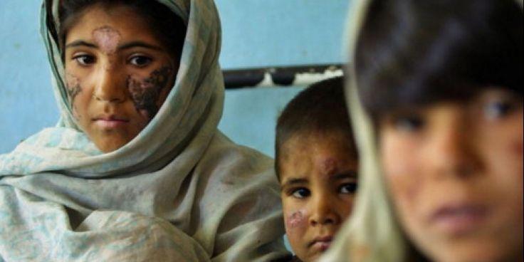 Η ΑΠΟΚΑΛΥΨΗ ΤΟΥ ΕΝΑΤΟΥ ΚΥΜΑΤΟΣ: Σαρκοβόρο βακτήριο εξαπλώνεται σε Συρία και Ιράκ –...