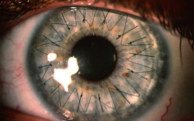 Picture of the Day: What Stitches in Your Eye Look Like. Result of a corneal transplant