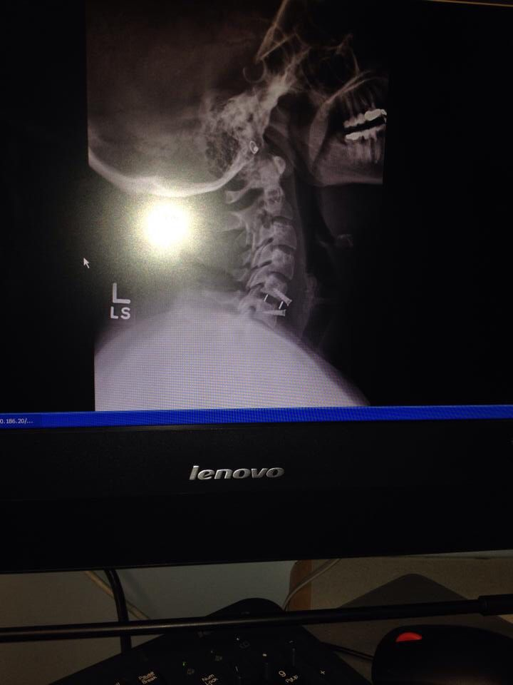 27 Best Images About Anterior Cervical Discetomy And