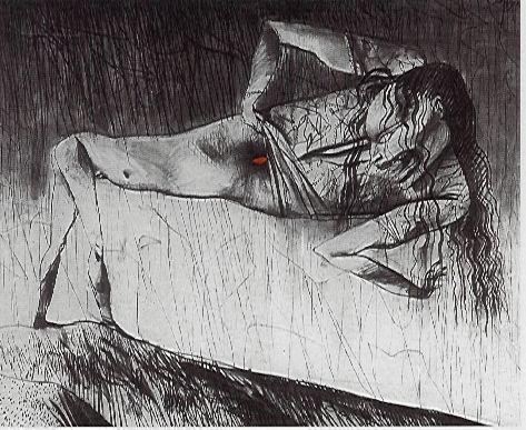 Niña mostrando su herida - German Londoño