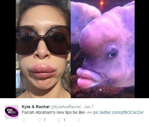 Bibir Farrah Abraham jontor. Injeksi Bibir Biar Seksi, Bibir Artis Film Esek-Esek ini Malah Jontor!