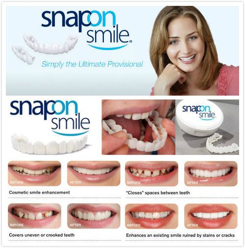 Using a mirror, firmly attach the Instant Smile Teeth to your existing teeth. Press them firmly against the teeth and gently press the impression material behind the real teeth with your thumb. Put your teeth in a cup of hot (almost boiling) water for 1 minute.   eBay!