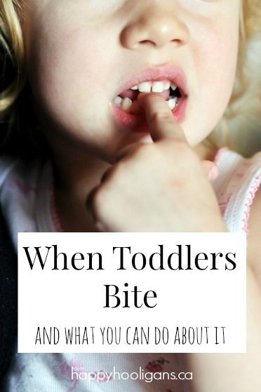 Solutions for biting toddlers