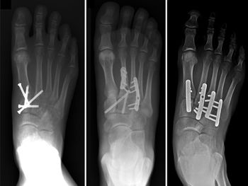 Lisfranc (Midfoot) Injury-OrthoInfo - AAOS