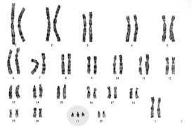 El síndrome de Down (S.D o trisomía 21) es una condición humana ocasionada por la presencia de 47 cromosomas en los núcleos de las células, en lugar de 46. Hay tres cromosomas 21 en lugar de los dos habituales. (seguir leyendo ... entra www.psicgracielahernandez.com)
