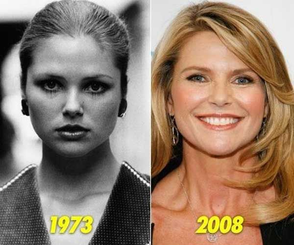 has christie brinkley had any plastic surgery