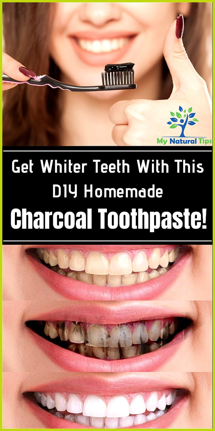 Get whiter teeth with this homemade charcoal toothpaste