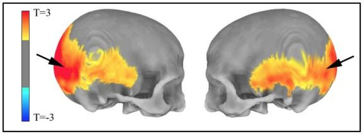 Researchers have produced the first direct evidence that parts of our brains implicated in mental disorders may be shaped by a 'residual echo' from Neanderthal DNA in our genomes. Evidence from MRI scans suggests that such ancient genetic variation may affect the way our brains work today -- and may hold clues to understanding deficits seen in schizophrenia and autism-related disorders.