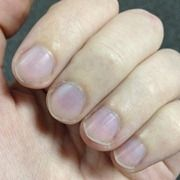 Purple fingernails can be a sign of a several health issue. You can try to increase the circulation in your hands, but if you have severe pain or the condition does not improve, see your doctor immediately.
