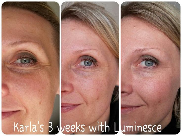Luminesce after 3 weeks.  http://www.lucjanr.jeunesseglobal.com/PersonalCare.aspx?id=1